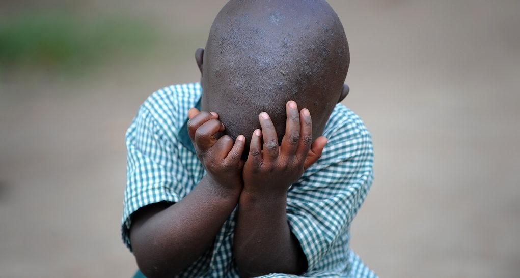 Ein trauriges Kind in Uganda. (Quelle: Alexander Volkmann)